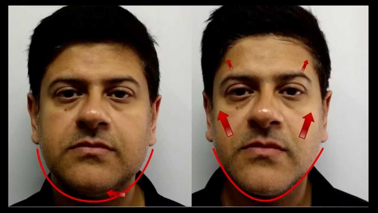ultra lift facial