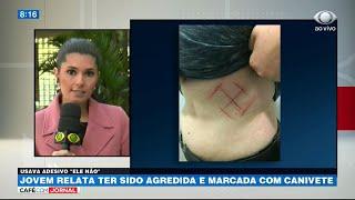 RS: Jovem relata ter sido agredida e marcada com canivete