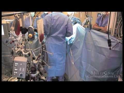 Mr  Prakash Punjabi   Open Heart Surgery   4th July, 2008