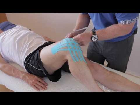 How To Apply Kinesiology Tape For A Swollen (oedema) Knee Joint