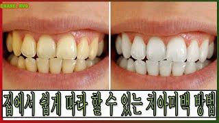 집에서 쉽게 따라 할 수 있는 치아미백 방법
