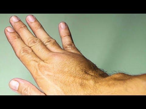 Вена на пальце руки вздулась и болит
