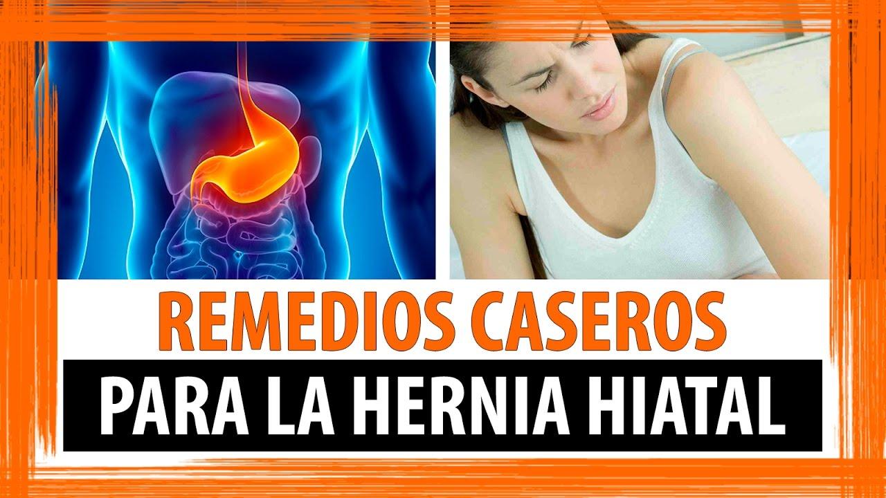 que es una hernia hiatal sintomas