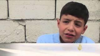 العاهات المستديمة تلاحق أطفال سوريا جراء الحرب