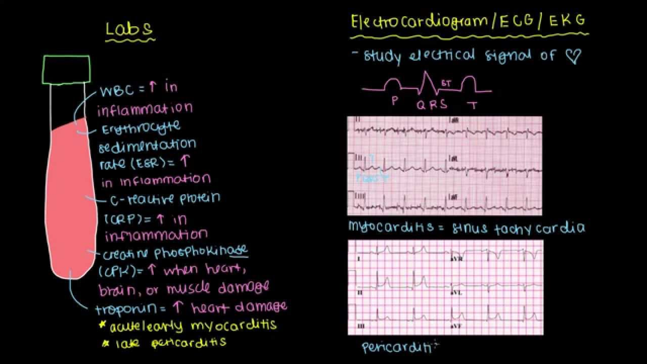 Diagnosis of myocarditis and pericarditis (part 1) - YouTube