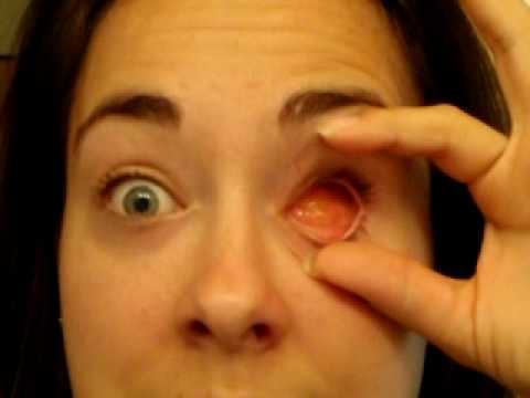 June 08 Removing And Replacing My Prosthetic Eye
