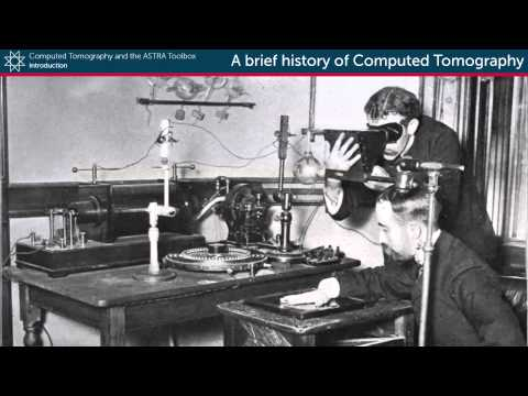 A brief history of Computed Tomography