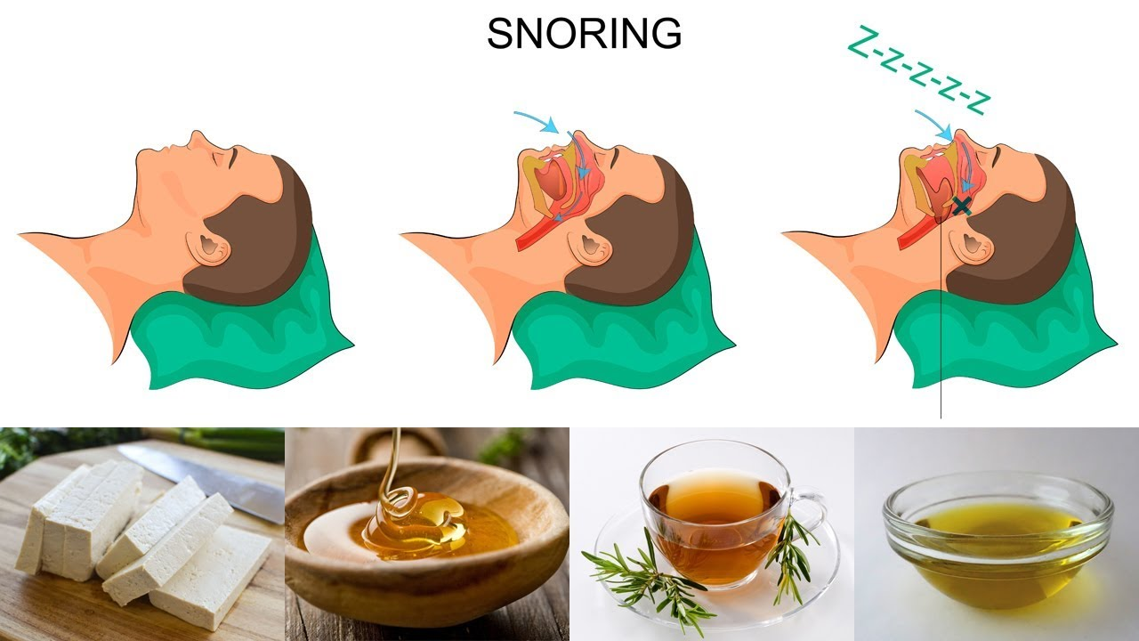 7 Foods That You Must Eat To Stop Snoring