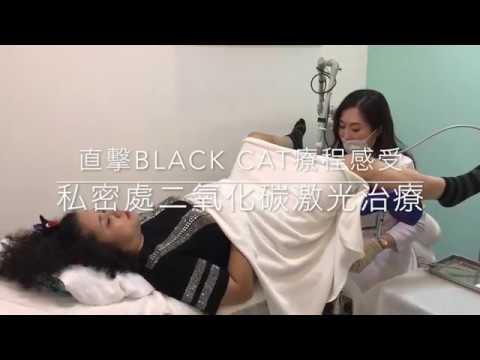 Black Cat 現場分享:私密處二氧化碳激光治療痛不痛?