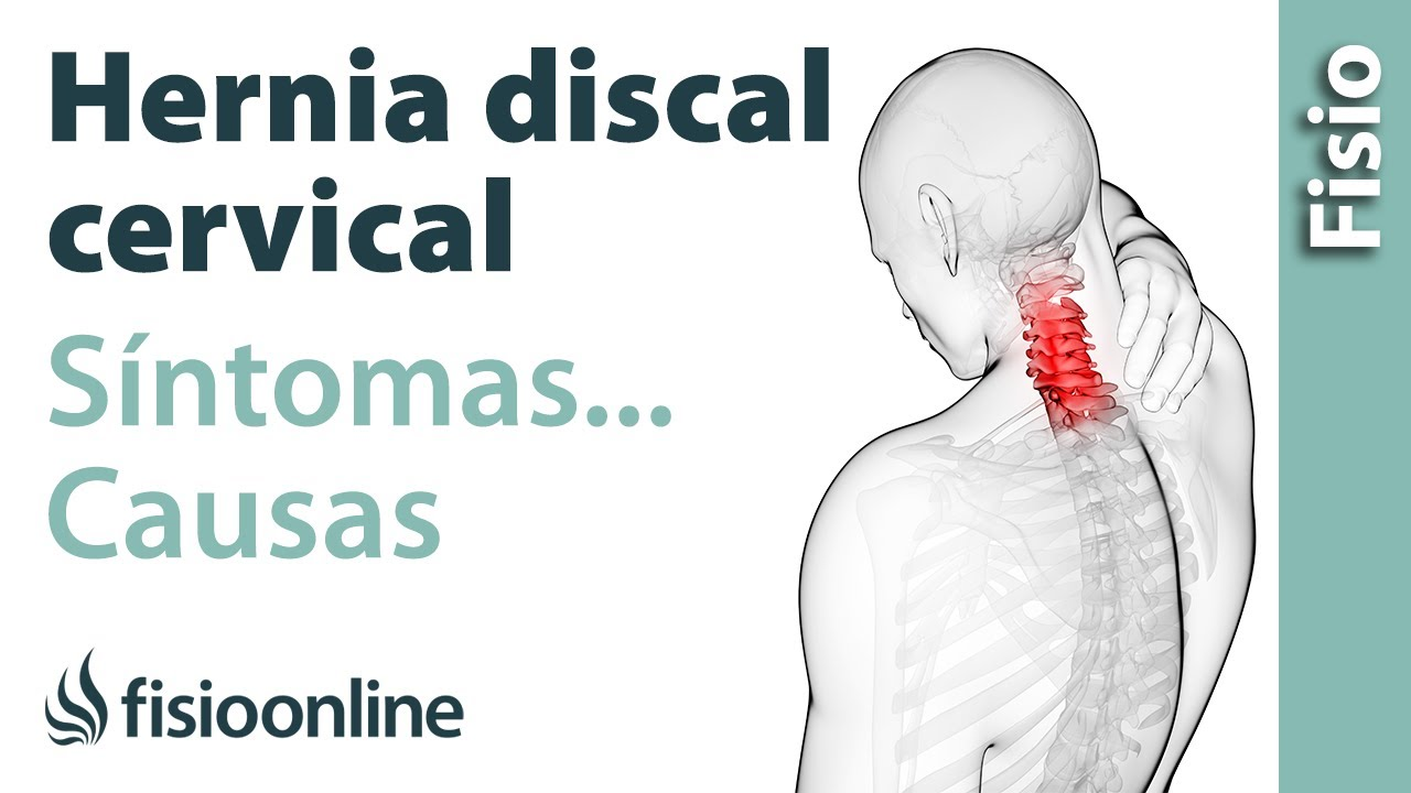causas protusion discal cervical