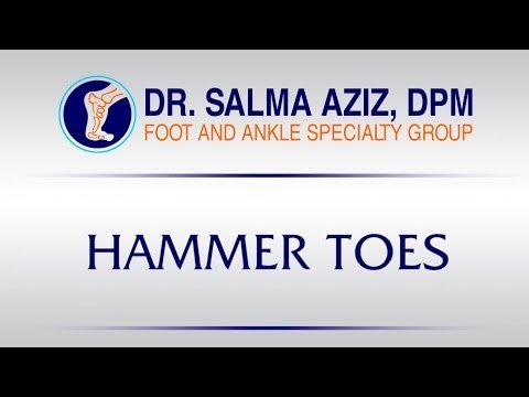 Orange County Podiatrist by Dr Salma Aziz at Foot and Ankle Specialty Group