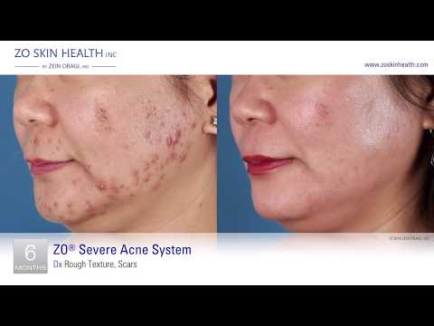 RSPLASTIC SURGERY PROUDLY RECOMMENDS ZO SKIN HEALTH® BY ZEIN OBAGI