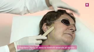 Lazer Epilasyon Yüz Bölgesi; Antalya; DK Klinik