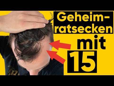 Geheimratsecken vorher nachher minoxidil Haarausfall