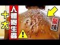 墨鏡哥|墨名奇妙#21|必看!小心牠們!全球十大人體寄生蟲!第1名可輕鬆端走你的小命....!