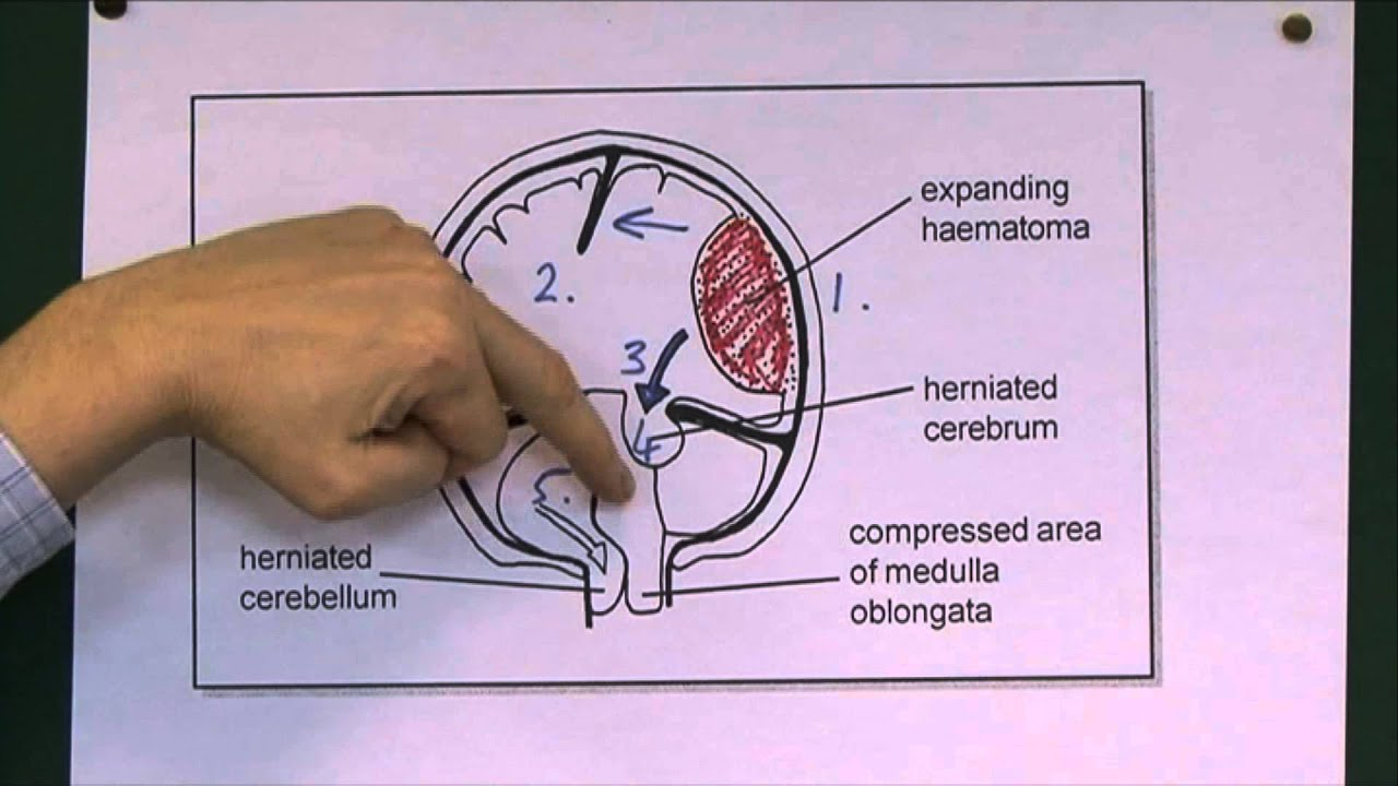 Head Injuries 9, Tentorial herniation