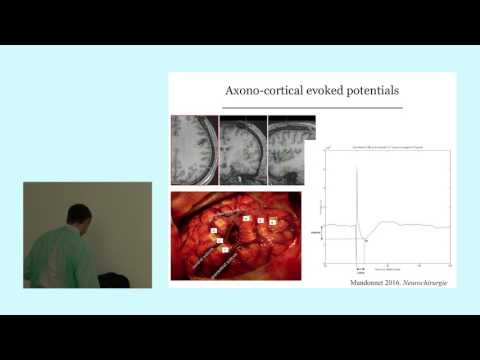 Emmanuel Mandonnet, Personalized awake Surgery, clinical applications, and neurocience advances