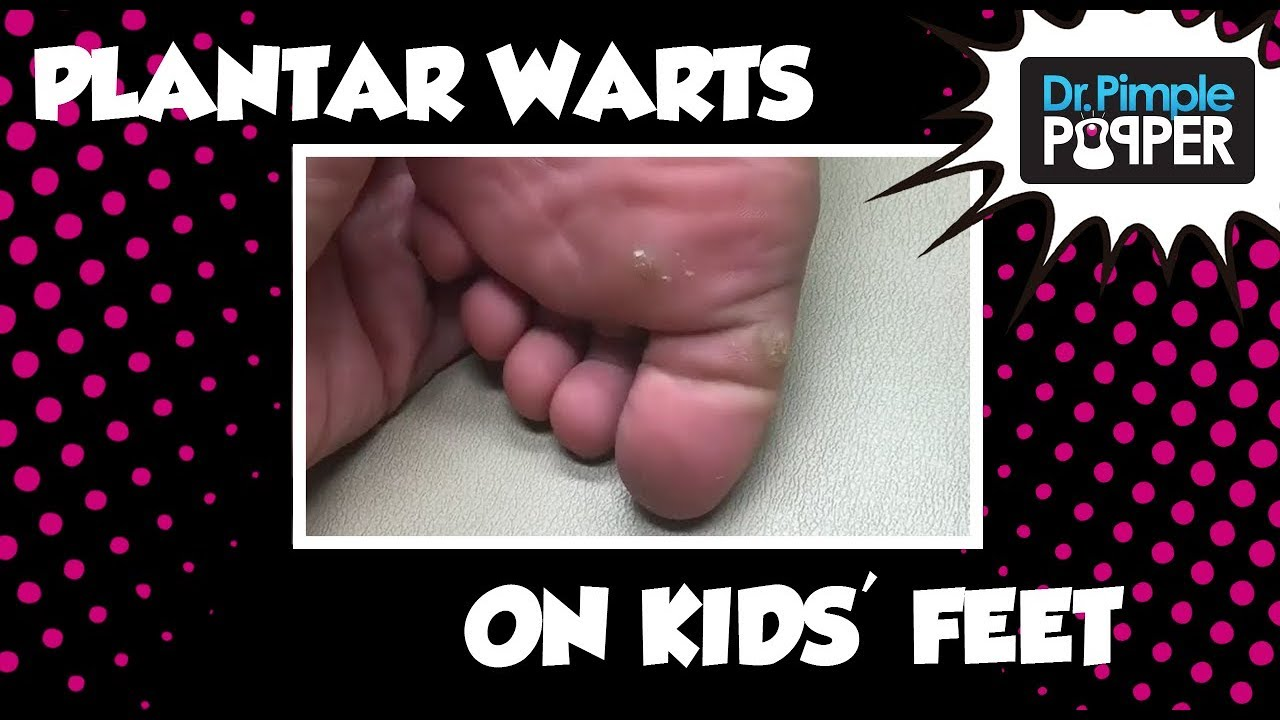 wart on foot in child