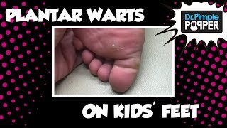 Plantar Warts on my kids