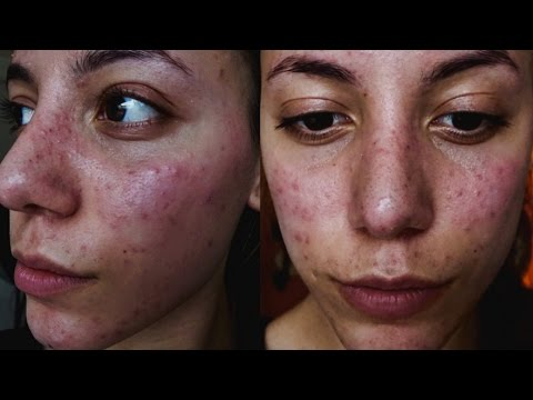 IT DESTROYED MY CONFIDENCE | ACNE JOURNEY | Roaccutane Treatment