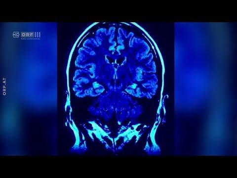 Alzheimer: Essen gegen
