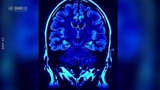Alzheimer: Essen gegen das Vergessen ORF treffpunkt medizin