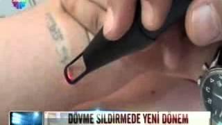 Bison Lazerli dövme silme-Estetiktrend medikal lazer cihazlar-Özgür İnal