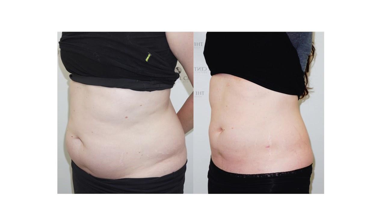 Dallas, TX | Liposuction of the Pubic Area | CosmeticGyn