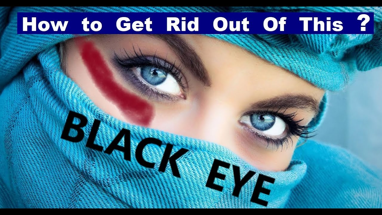 how to get rid of a black eye quickly