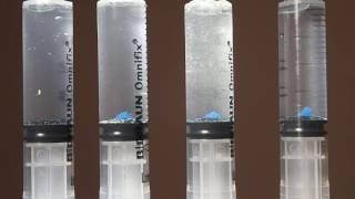 EndoActivator vs. PUI vs. PIPS Laser vs. VDW EDDY: Part Two