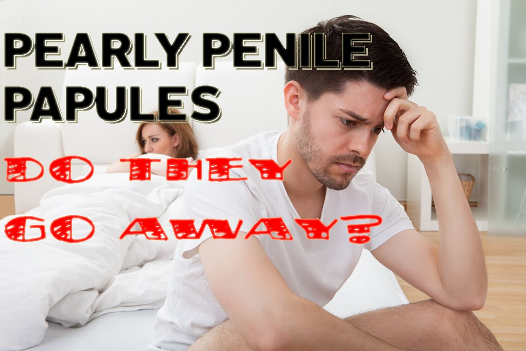Do pearly penile papules go away