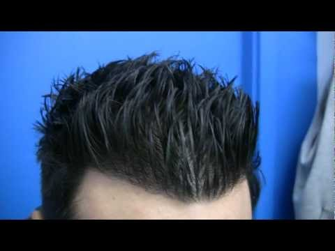 Dense Packing Hair Transplant