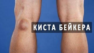 Что такое киста Бейкера коленного сустава?