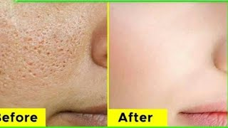 How to Get Rid of Large OPEN PORES Permanently _Anaysa For
