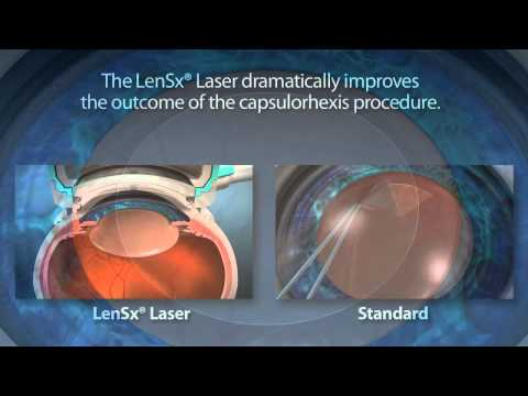 Laser Cataract Surgery Charlotte Indian Trail Monroe Matthews, NC