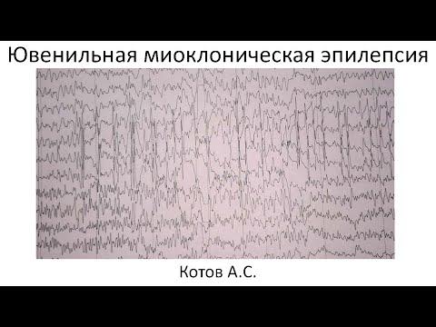 Миоклоническая эпилепсия: использование медикаментозной
