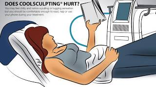 4 Burning Questions About CoolSculpting®