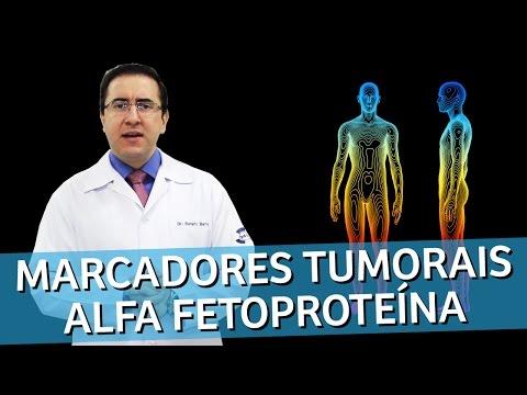 Vídeo Exame alfa fetoproteína