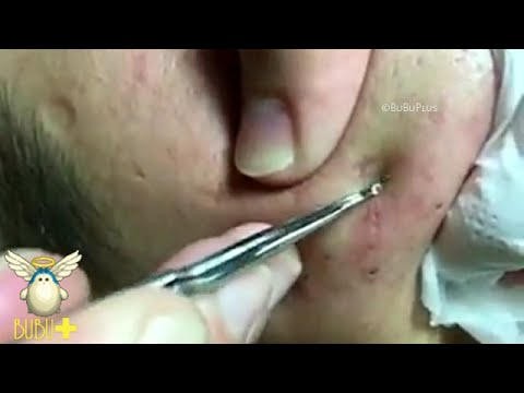 Opinion facial with extraction