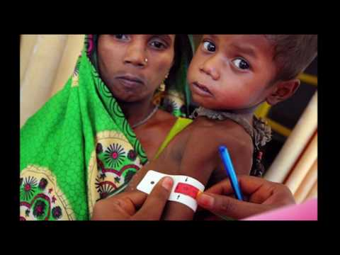 Malnutrition   Indian Children   Chauthi Duniya