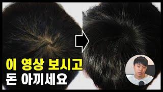 탈모, 두피염 인생에 도움이 될 영상  (feat. 맥…