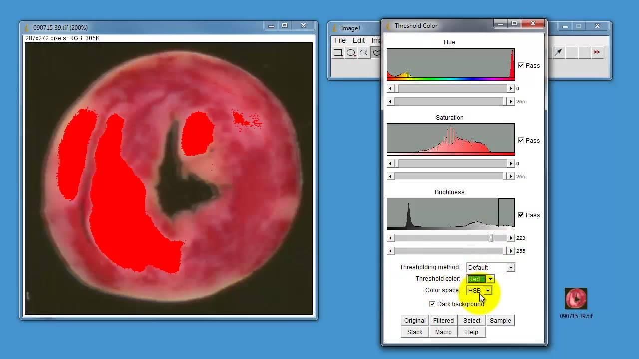 Using ImageJ to measure areas in histological samples - YouTube