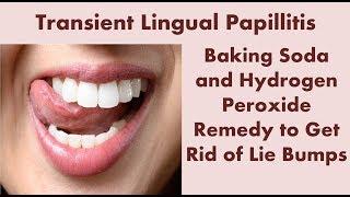 Transient Lingual Papillitis