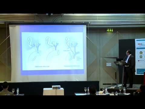 Hayan Bismar | Saudi Arabia | Surgery 2015| Conference Series LLC