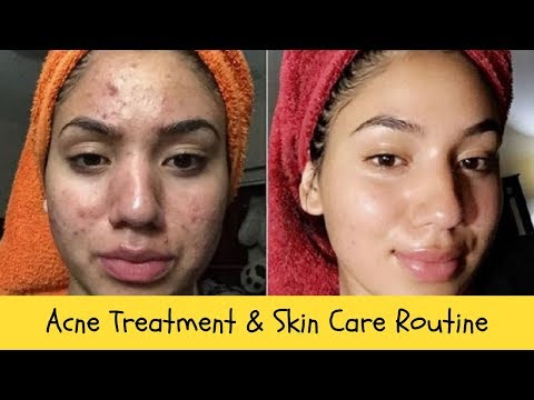 acne-treatment-&-skin-care-routine-|-#acnetreatment