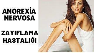 Yeme Bozukluğu, Zayıflama Hastalığı,  Anoreksiya Nervoza, Serdar Akgün