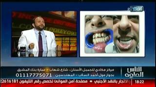الناس الحلوة | التقنيات الحديثة فى عالم تجميل الأسنان مع د.كريم مكادى