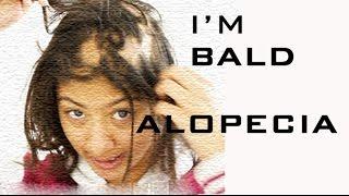 I LOST MY HAIR!   Alopecia Hairloss