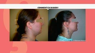 [SANTE] Chirurgie du double menton #CCVB