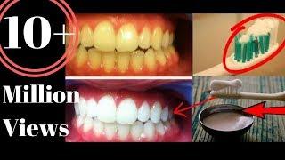 सिर्फ 2 मिनट में पीले गंदे दाँतों को मोती जैसा चमका देगा ये ज़बरदस्त घरेलु नुस्खा/ TEETH whitening